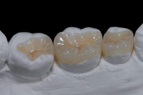 onlay / inlay docteur stain dentiste à La Rochelle
