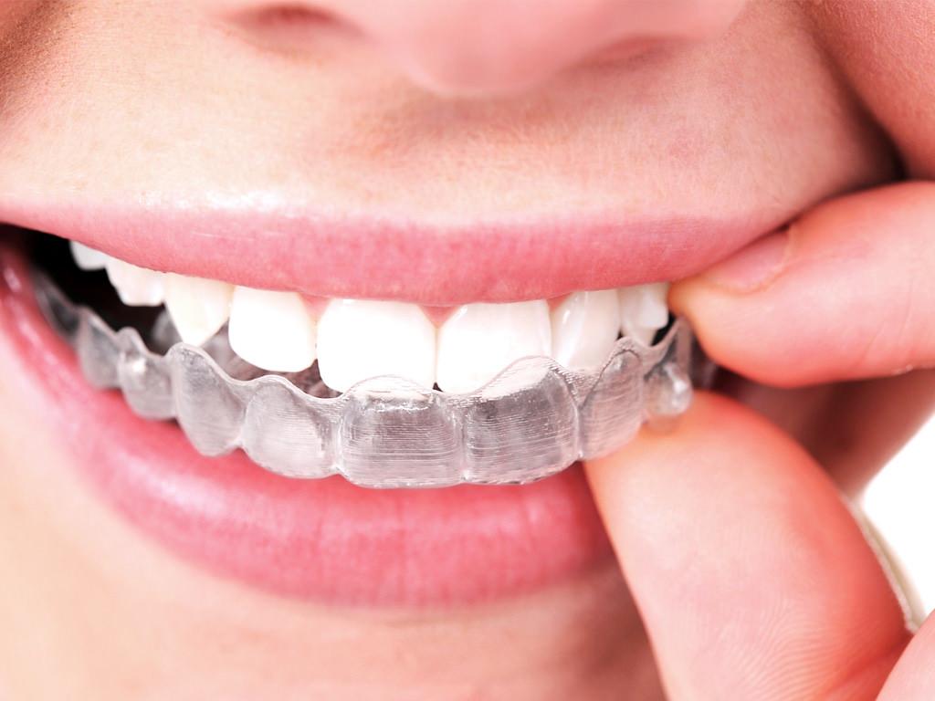 traitement alignement des dents invisible docteur stain dentiste à la rochelle