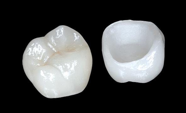 prothèses dentaires docteur stain dentiste à La Rochelle