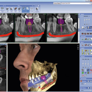 logiciel de planification implantaire - équipements innovants docteur stain dentiste à La Rochelle