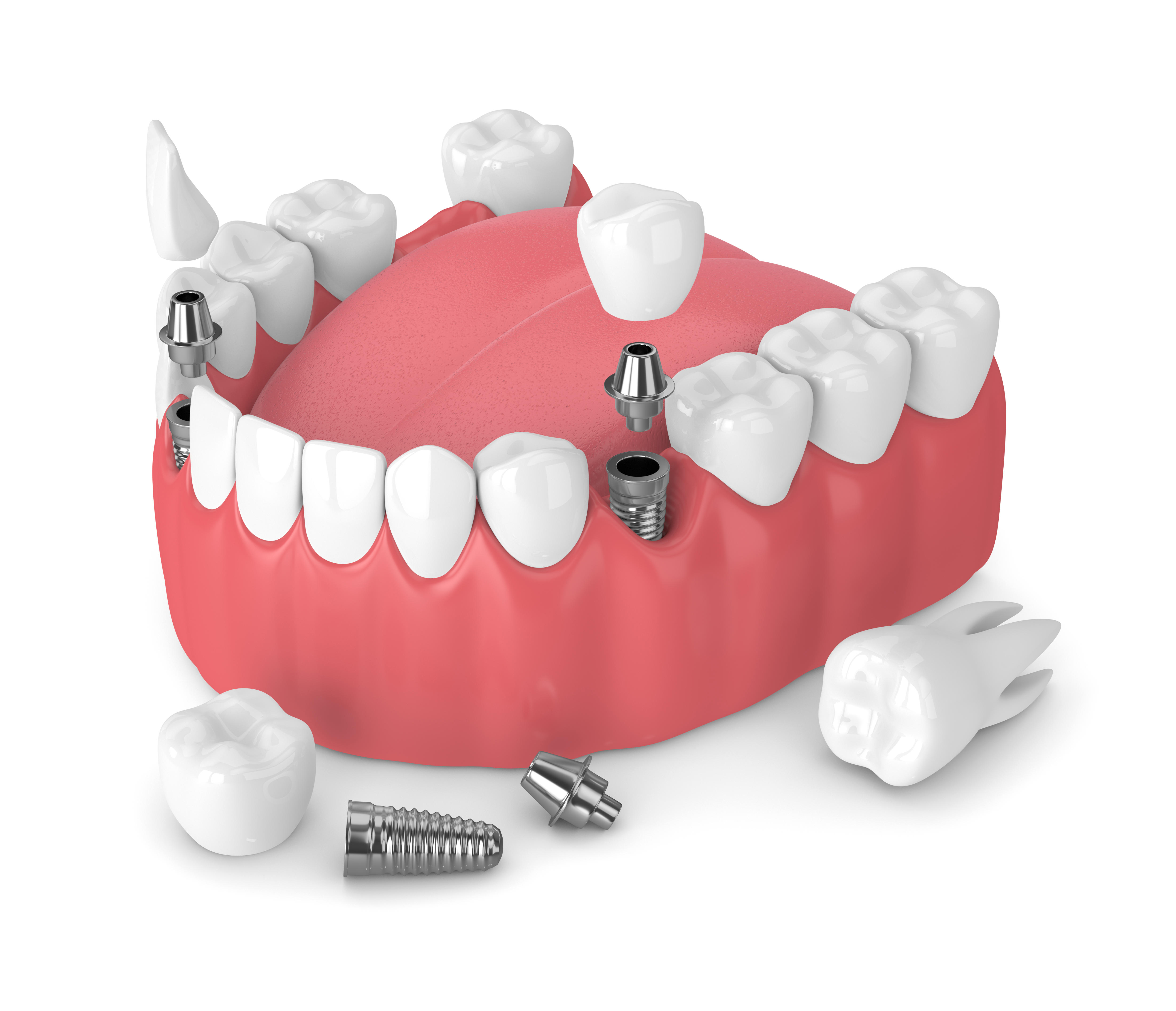 Implant dentaire La Rochelle